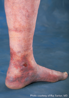Venous Ulceration