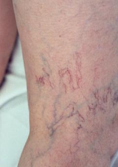 Vein Disease Varicose Vein Disease Tn Milligan Vein Knoxville
