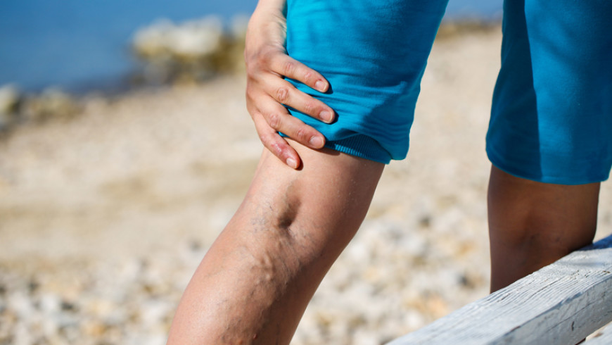 What Causes Vein Disease?