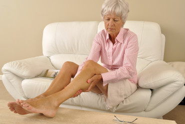 What serious health concerns do varicose veins pose?